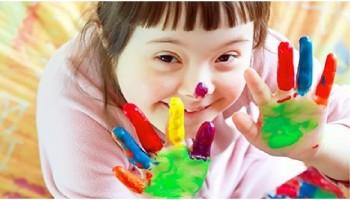 Disabilità intellettuale e sindrome di Down